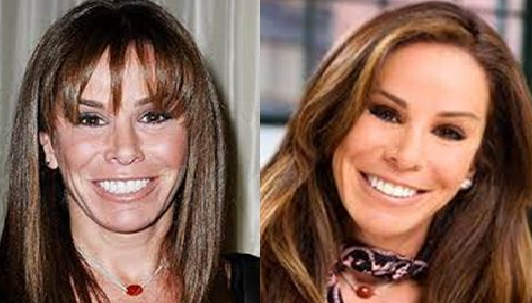 Melissa Rivers plastic surgery before and after