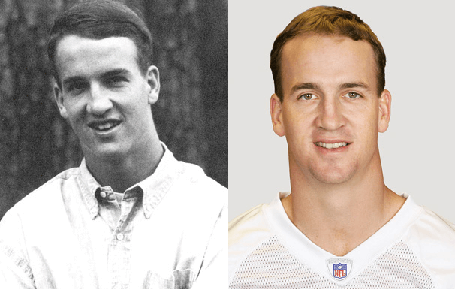 Peyton Manning Plastic Surgery before and after