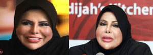 Sharifah Aini Plastic Surgery Before and After Photos