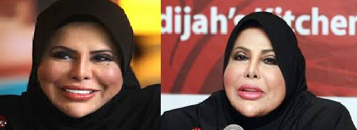 Sharifah Aini plastic surgery before and after