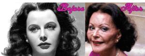 Hedy Lamarr Plastic Surgery Before and After Photos