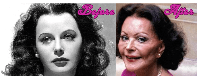 Hedy Lamarr Plastic Surgery before and after
