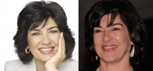 Christiane Amanpour Plastic Surgery before and after photos