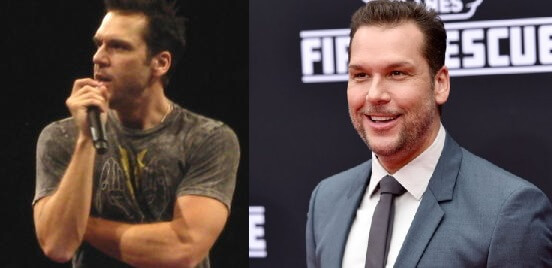 Dane Cook Plastic Surgery before and after photos