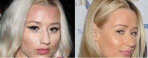 Iggy Azalea Plastic Surgery Before and After Photos
