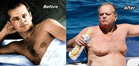 Jack Nicholson Plastic Surgery before and after photos