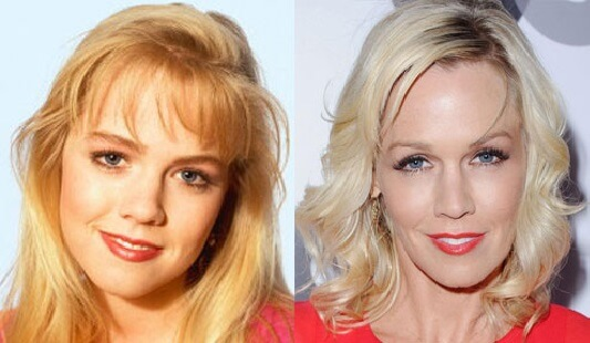 Jennie Garth Plastic Surgery before and after photos