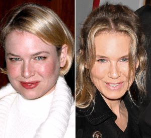 Renee Zellweger Plastic Surgery Before and After Photos