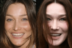 Carla Bruni Plastic Surgery Before and After Photos