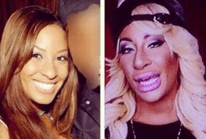 Hazel E Plastic Surgery Before and After Photos