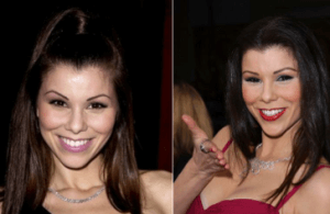 Heather Dubrow Plastic Surgery Before and After Photos