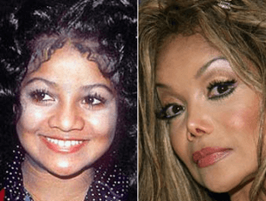 Latoya Jackson Plastic Surgery Before and After Photos