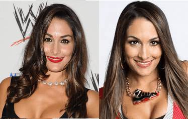 Nikki Bella Plastic Surgery before and after photos