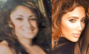 Nikki Mudarris Plastic Surgery Before and After Photos