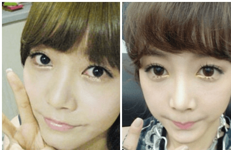 T-ara Soyeon Plastic Surgery before and after photo