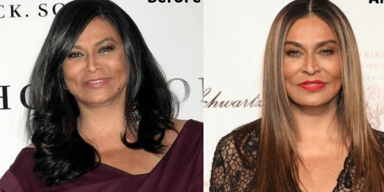 Tina Knowles Plastic Surgery before and after photos