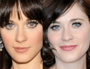 Zooey Deschanel Plastic Surgery Before and After Photos