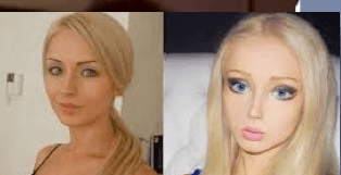 Barbie plastic surgery before and after photos