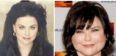 Delta Burke Plastic Surgery before and after photos