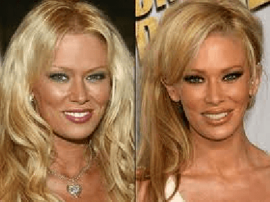 Jenna Jameson Plastic Surgery before and after photos