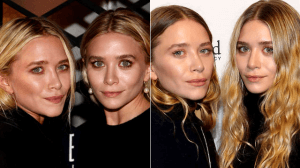 Mary Kate and Ashley Plastic Surgery before and after photos