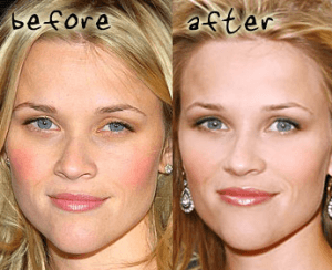 Reese Witherspoon Plastic Surgery Before and After Photos