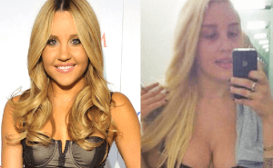 Amanda Bynes Plastic Surgery Before and After Photos