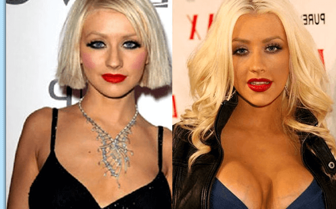 Christina Aguilera plastic surgery before and after photos