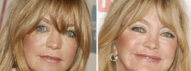 Goldie Hawn plastic surgery before and after photos