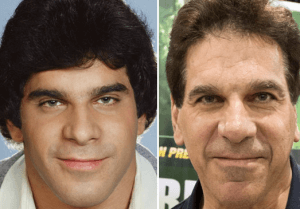 Lou Ferrigno Plastic Surgery Before and After Photos