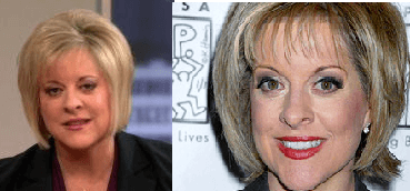 Nancy Grace Plastic Surgery before and after photos