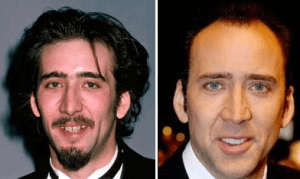 Nick Cage Plastic Surgery Before and After Photos