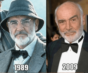 Sean Connery Plastic Surgery Before and After Photos