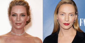 Uma Thurman Plastic Surgery Before and After Photos