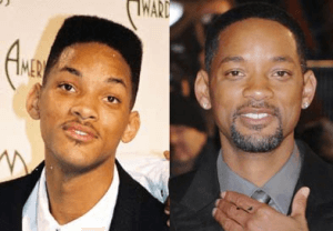 Will Smith plastic surgery before and after photos