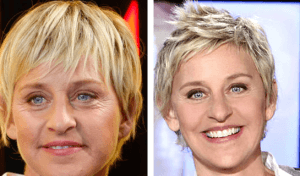 Ellen DeGeneres Plastic Surgery Before and After Photos