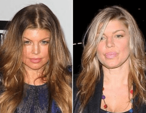Fergie Plastic Surgery Before and After Photos