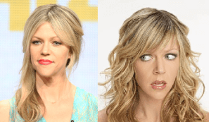 Kaitlin Olson Plastic Surgery Before and After Photos