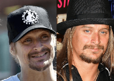 Kid Rock plastic surgery before and after photos