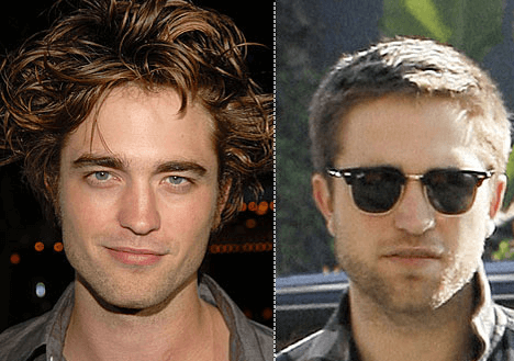 Robert Pattinson plastic surgery before and after photos