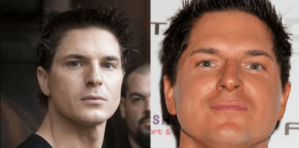 Zak Bagans plastic surgery before and after photos