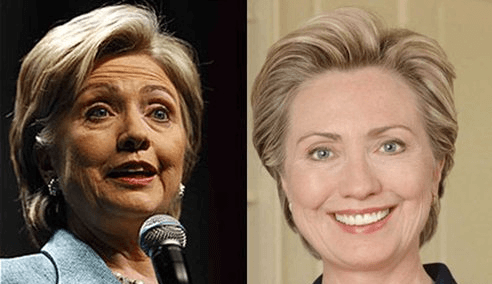 Hillary Clinton plastic surgery before and after photos