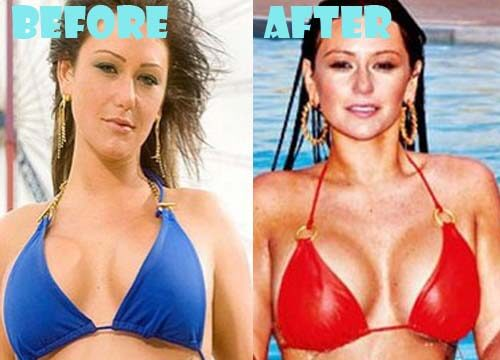 JWoww Plastic Surgery  before and after photos