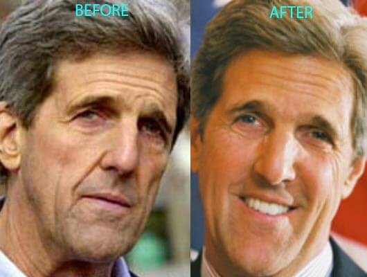 John Kerry Plastic Surgery before and after photos