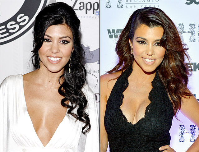 Kourtney Kardashian plastic surgery before and after photos