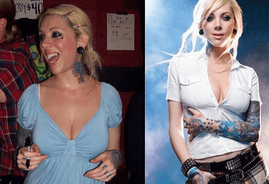Maria Brink plastic surgery before and after photos