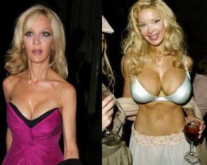 Alicia Douvall Plastic Surgery Before and After Photos