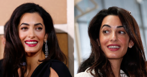 Amal Alamuddin Plastic Surgery Before and After Photos