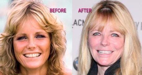 Cheryl Tiegs plastic surgery before and after photos