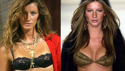 Gisele Bundchen plastic surgery before and after photos